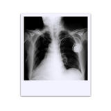 X-ray film Stock Photos