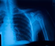 X-ray film. Of shoulder fracture Stock Image