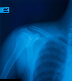 X-ray film. Of shoulder fracture Royalty Free Stock Photography