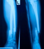 X-ray film. X ray film of bone leg fracture Stock Images