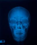 X ray film Royalty Free Stock Photo