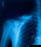 X-ray film Royalty Free Stock Photo