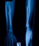 X-ray Film Royalty Free Stock Photography