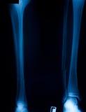 X-ray film. X ray film of bone leg fracture stock photography