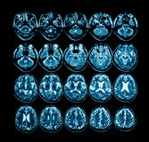 X-ray film of the brain computed tomography Royalty Free Stock Photography