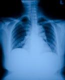 X-ray film Stock Image