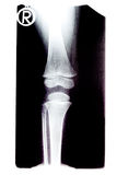 X-ray film of a childes femur and knee joint Stock Photos