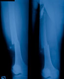X-ray film. X ray film of distal femur fracture stock photography