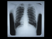 X-ray film. Stock Photo