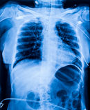X-ray film of human female chest Stock Photo