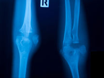X ray film of knee. Fracture Stock Photos