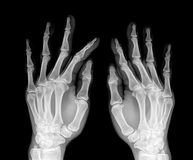 X-ray. Film x-ray normal both human's hands stock photos