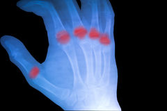 X-ray film show normal human's hand right. Stock Photo