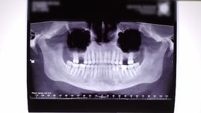 X-ray film of teeth and jaw. Doctor watching in hospital stock video footage