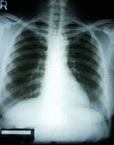 X-ray film of woman chest. X-ray film of a woman chest with the black background stock photography