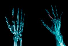 Fracture in dex finger x-ray. X-ray finger show fracture of index finger Stock Images