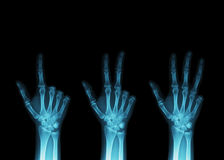 X-Ray fingers Stock Image