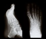 X-ray of a foot Stock Photo