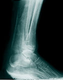 X-RAY OF FOOT. Real x-ray picture of the broken foot royalty free stock photos