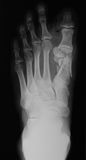 X-ray of foot, AP view. Royalty Free Stock Photo