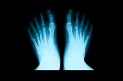 X-ray of foot. royalty free stock photos