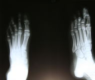 X-ray of foot on black background Royalty Free Stock Photos