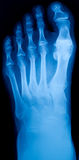 X-ray of the foot Royalty Free Stock Image