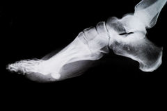 X Ray of the Foot. stock photography