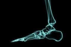 X-ray foot. Royalty Free Stock Photography