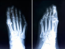 X-ray of foot fingers.Radiography with deformed toes.Hallux valg. Us sample Royalty Free Stock Photos