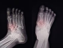 X-ray Foot Findings Fracture royalty free stock photo