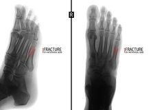 X-ray of the foot. Fracture of the 5th metatarsal bone. Marker. Negative. stock photography