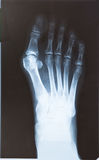 X-ray of the foot. With valgus breach bones royalty free stock image
