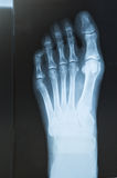 X-ray of the foot Stock Photography