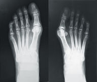 X-ray of the foots Royalty Free Stock Image
