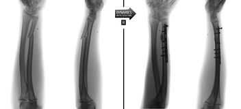 X-ray of the forearm bones. Fracture of the ulna with reposition and fixation of the metalwork. Negative. Right royalty free stock image