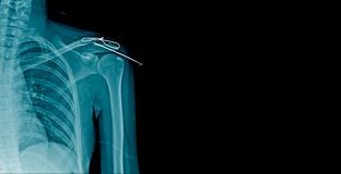 X-ray fracture clavicle with post op fixation. Shoulder banner royalty free stock photos