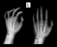 X-ray Fracture of metaphysis 3 of metacarpal bone. Stock Photography