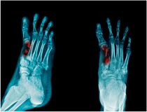 Fracture metatasal bone of right foot stock photography