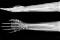 X-ray fracture ulnar bone. (forearm bone royalty free stock photo