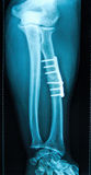 X-ray of fractured leg bone Royalty Free Stock Photo