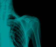 X-Ray. Of a fractured upper arm, anterior-posterior view Royalty Free Stock Photography