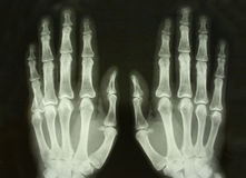 X-ray Front Picture Of The Palms Royalty Free Stock Photography