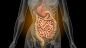 X-ray of the gastrointestinal tract. Radiography of the stomach stock footage