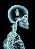 X-ray grenade Stock Image