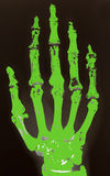 X-ray of hand. Coloured in green Stock Photos