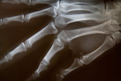 X-ray of hand. Detail of an x-ray of a hand Stock Photography