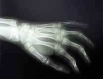 X-ray hand. X-ray of a hand fracture Royalty Free Stock Photo