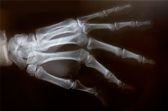 X-ray of hand. Detail of an x-ray of a hand royalty free stock images