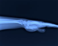 X-ray hand. Stock Photos